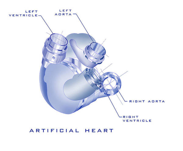 Painting - Artificial Heart by James Christopher Hill