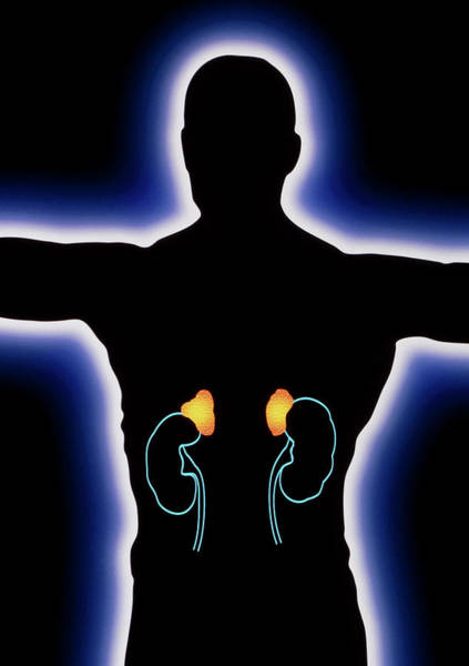 Adrenal Gland Photograph - Artwork Of Human Figure Showing Kidneys & Adrenals by Alfred Pasieka/science Photo Library