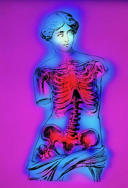 Artwork Of Human Skeleton On Venus De Milo Statue Art Print