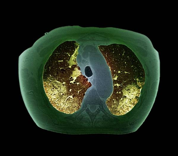 Wall Art - Photograph - Asbestosis by Zephyr/science Photo Library