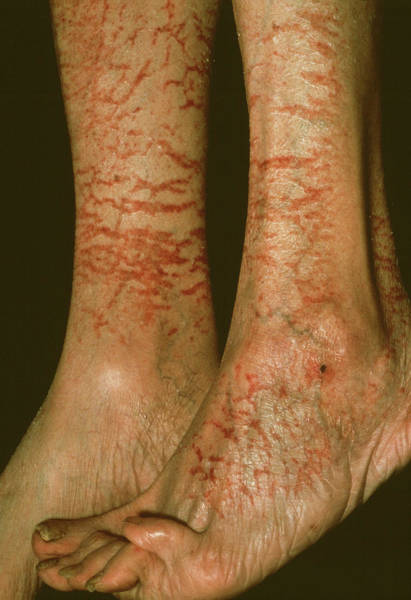 Scaling Photograph - Asteatotic Eczema by Cnri/science Photo Library
