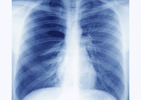 Bronchus Photograph - Asthma by Cavallini James/science Photo Library