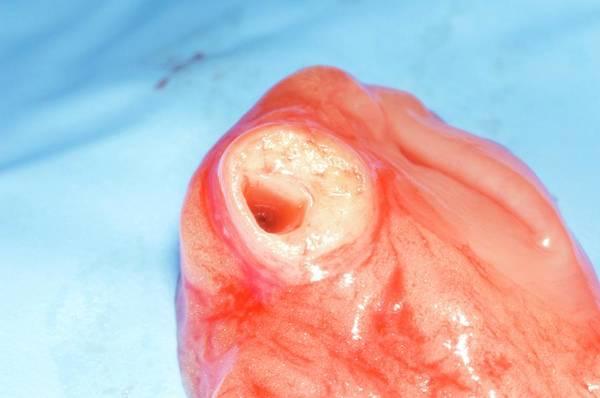 Fatty Tissue Photograph - Atheromatous Coronary Artery by Dr P. Marazzi/science Photo Library