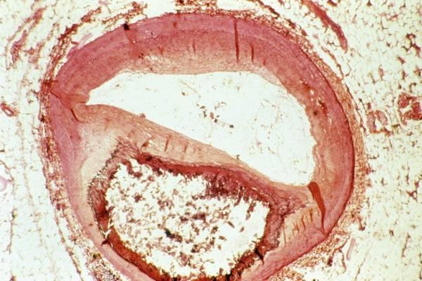 Fatty Tissue Photograph - Atherosclerosis by Cnri