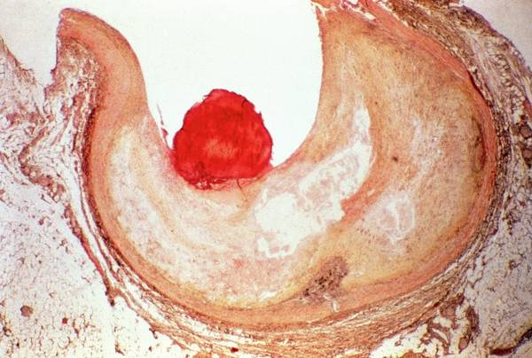 Fatty Tissue Photograph - Atherosclerosis by Cnri/science Photo Library