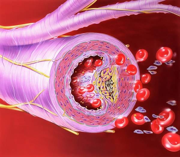 Fatty Tissue Photograph - Atherosclerosis Of Artery by John Bavosi