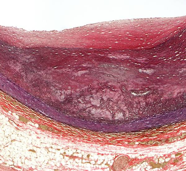 Fatty Tissue Photograph - Atherosclerosis by Steve Gschmeissner