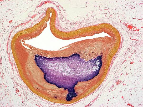 Atherosclerosis Wall Art - Photograph - Atherosclerosis by Steve Gschmeissner/science Photo Library