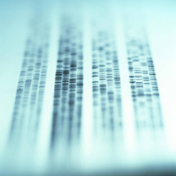 Sequence Photograph - Autoradiogram Showing A Dna Fingerprint by Colin Cuthbert/science Photo Library