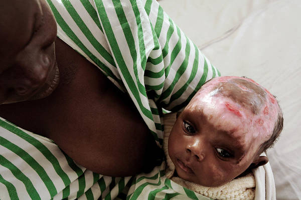 Developing Country Photograph - Baby With Severe Burns by Mauro Fermariello/science Photo Library