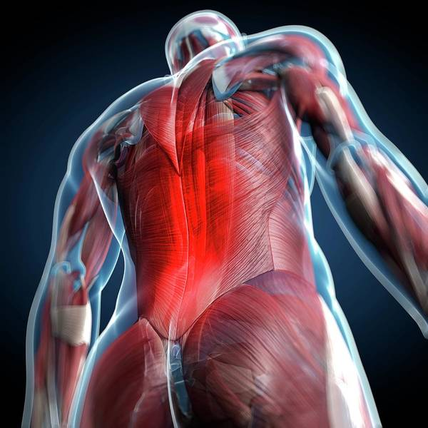 Muscle Tissue Digital Art - Back Pain, Conceptual Artwork by Science Photo Library - Sciepro