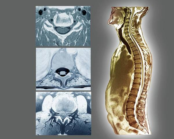 Lumbar Vertebra Photograph - Backbone And Spinal Cord Anatomy by Zephyr/science Photo Library