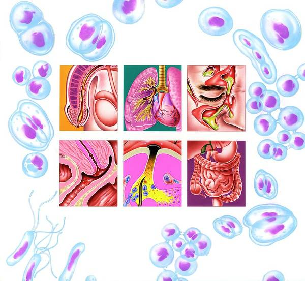 Infection Wall Art - Photograph - Bacterial Infections by John Bavosi