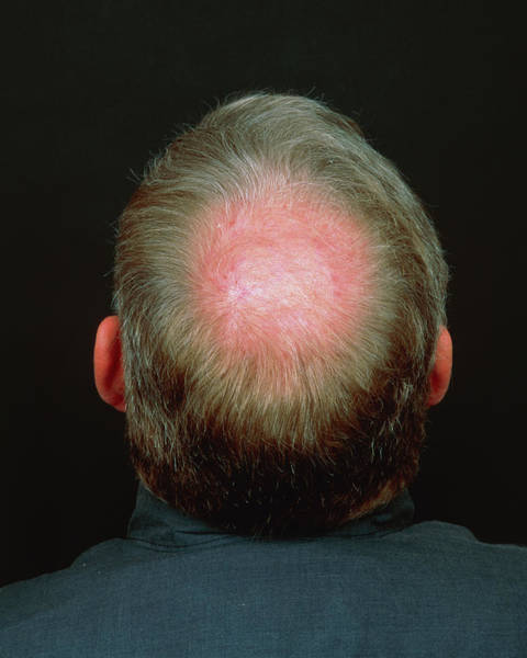 Baldness Art Print by Alex Bartel/science Photo Library