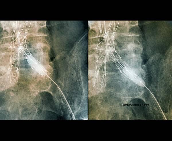 Radiological Photograph - Balloon Angioplasty by Zephyr