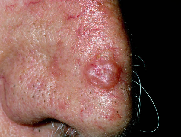 Carcinoma Wall Art - Photograph - Basal Cell Carcinoma On Nose Of Elderly Man by Dr P. Marazzi/science Photo Library
