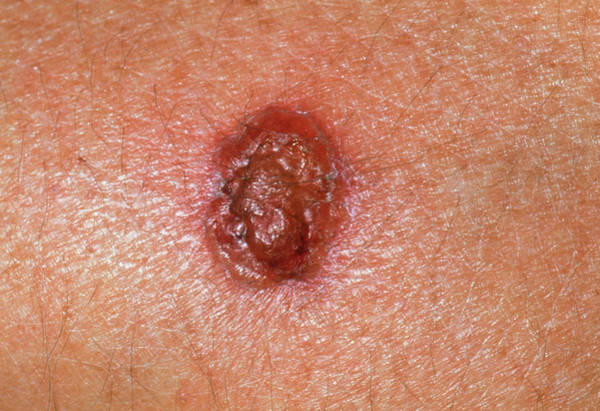 Rodents Photograph - Basal Cell Carcinoma One Week After Cryosurgery by Dr P. Marazzi/science Photo Library