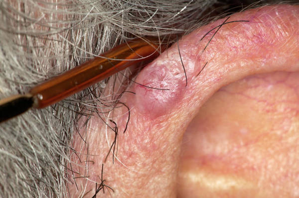 Rodents Photograph - Basal Cell Carcinoma by Science Photo Library