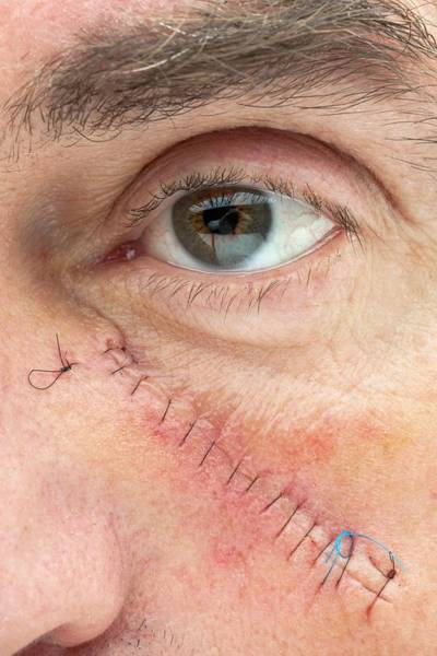 Rodents Photograph - Basal Cell Carcinoma Treatment by Saturn Stills/science Photo Library