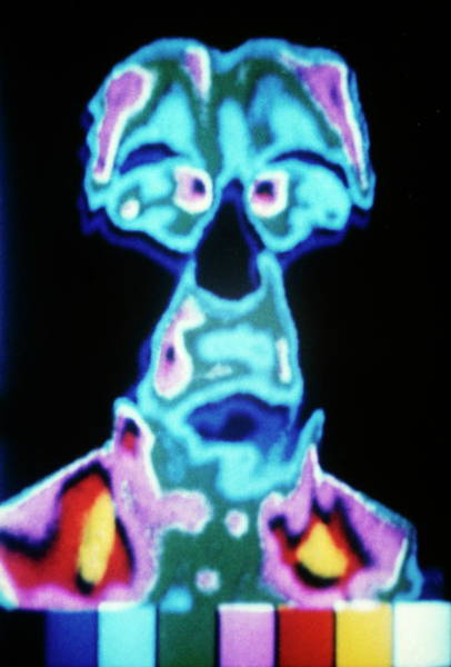 Ir Photograph - Before Migraine by Dr. G. Ravily/science Photo Library