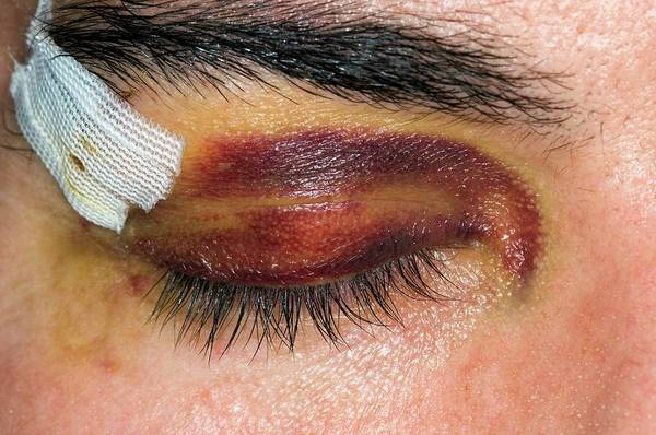 Dressing Up Photograph - Black Eye From A Sport's Injury by Dr P. Marazzi/science Photo Library