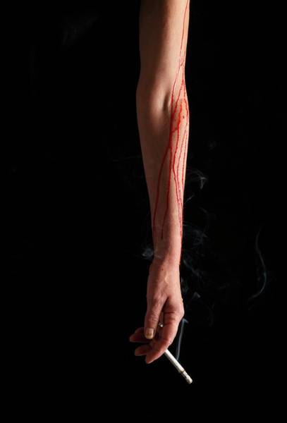 Body Parts Photograph - Bleeding Arm Holding Cigarette by Victor De Schwanberg/science Photo Library