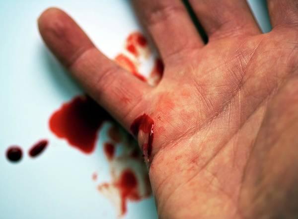 Bleeding Photograph - Bleeding Cut On Hand by Ian Gowland