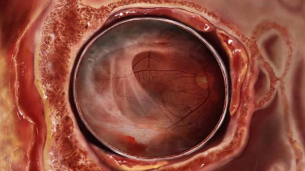 Blindness, Eye Damage Art Print