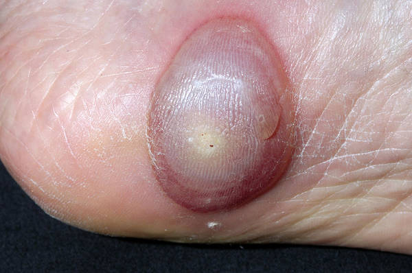 Wart Wall Art - Photograph - Blister Following Verruca Cryotherapy by Dr P. Marazzi/science Photo Library