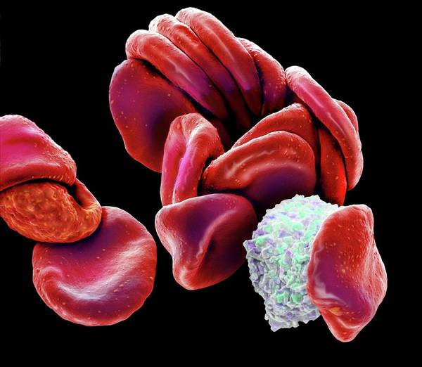 Wall Art - Photograph - Blood Cells by Steve Gschmeissner/science Photo Library
