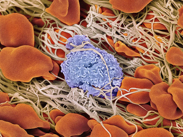 Wall Art - Photograph - Blood Clot by Steve Gschmeissner/science Photo Library