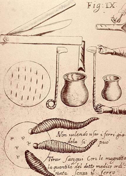 1600s Wall Art - Photograph - Blood-letting Instruments by National Library Of Medicine