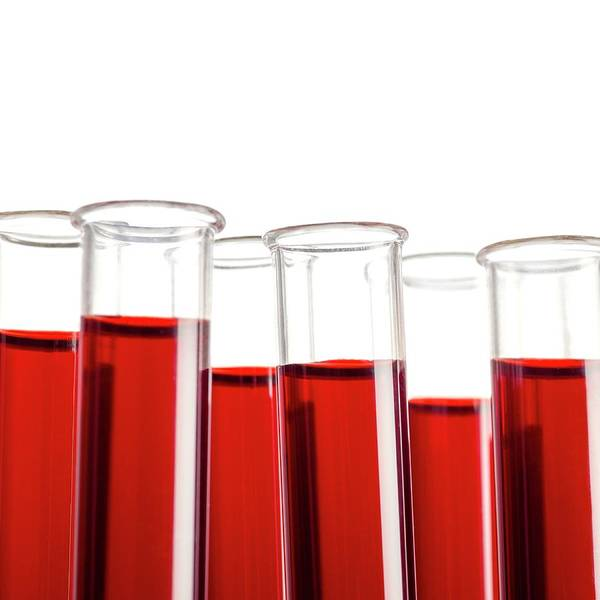 Hematology Wall Art - Photograph - Blood Samples In Test Tubes by Science Photo Library