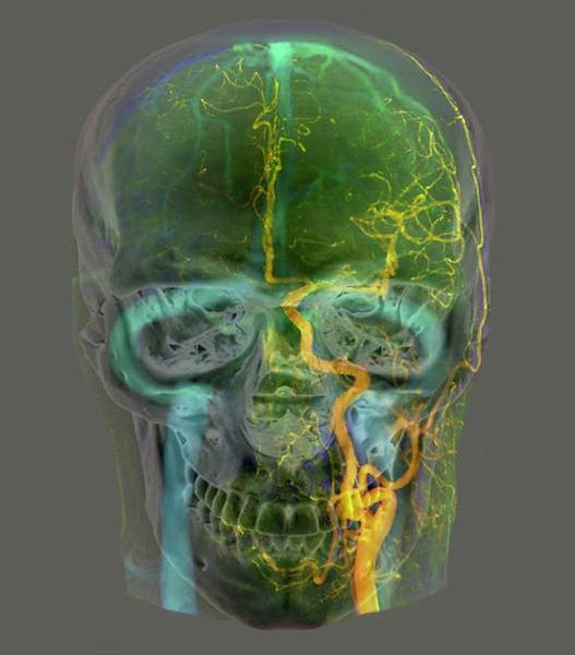 Cerebral Angiogram Photograph - Blood Supply Of The Head by Zephyr