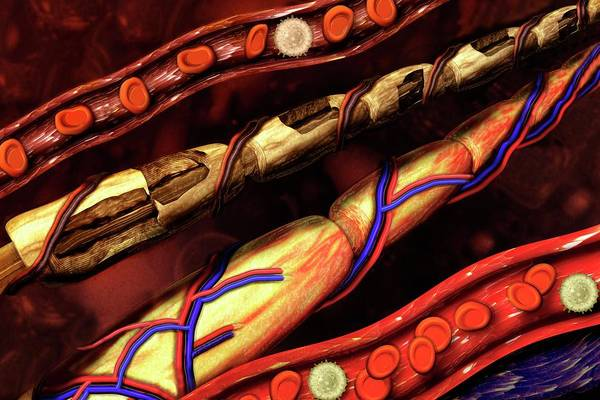 Myelin Wall Art - Photograph - Blood Vessel And Nerve Damage by Carol & Mike Werner