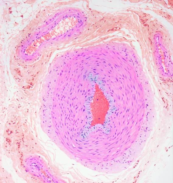 Artery Wall Art - Photograph - Blood Vessels by Steve Gschmeissner