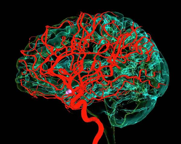 Wall Art - Photograph - Blood Vessels Supplying The Brain by K H Fung/science Photo Library