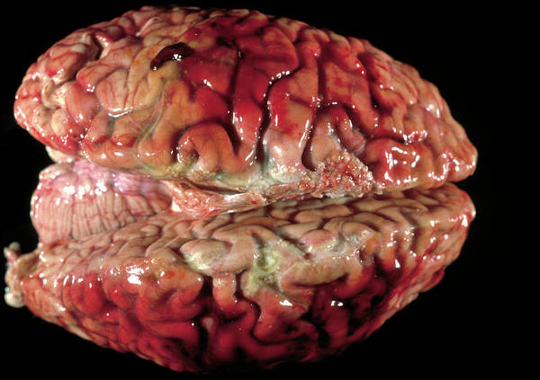 Cerebral Photograph - Bloody Brain Membranes by Cnri/science Photo Library