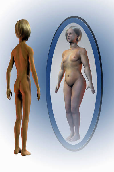 Anorexia Photograph - Body Dysmorphia by Carol & Mike Werner