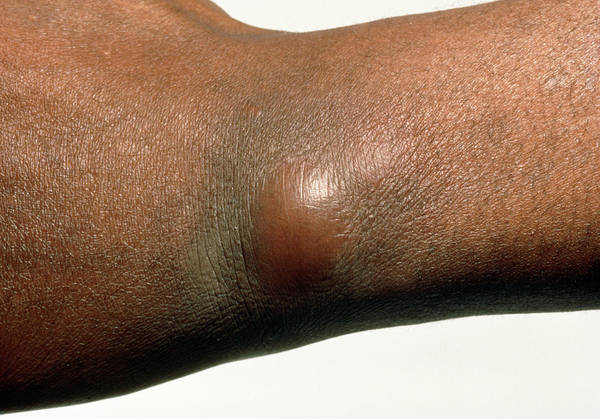 Boil Photograph - Boil In The Skin Of The Wrist by Science Photo Library