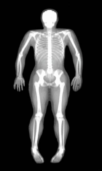 Human Bone Wall Art - Photograph - Bone Density Scan by Grand Forks Human Nutrition Research Center/us Department Of Agriculture/science Photo Library