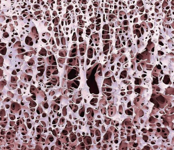 Biological Wall Art - Photograph - Bone Tissue by Steve Gschmeissner