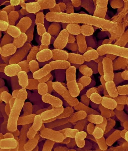Anaerobe Wall Art - Photograph - Bovine Rumen Bacterium by Dennis Kunkel Microscopy/science Photo Library