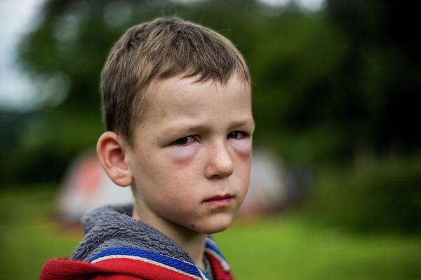 Fever Photograph - Boy With Hay Fever Allergic Reaction by Samuel Ashfield