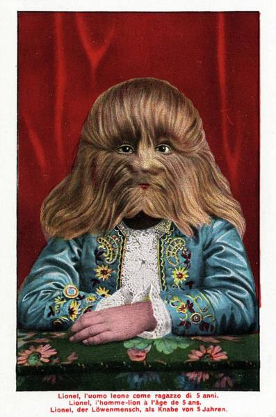 Lionel Photograph - Boy With Hypertrichosis by American Philosophical Society