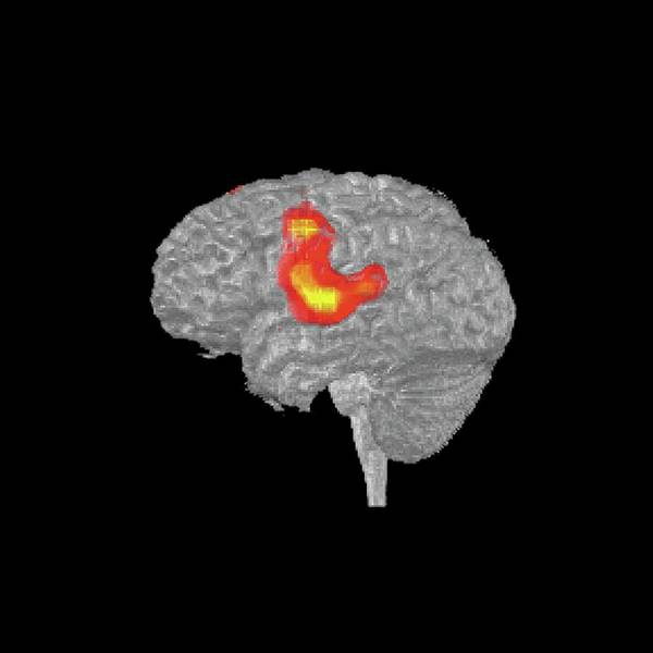 Brain Cancer Wall Art - Photograph - Brain Activity During Speech by National Cancer Institute/science Photo Library