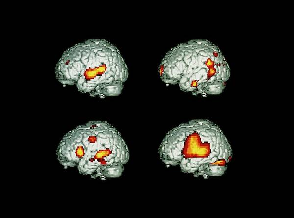 Neurology Photograph - Brain Activity When Speaking/listening by Wellcome Dept. Of Cognitive Neurology/ Science Photo Library