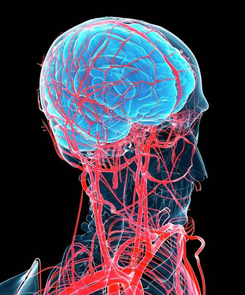Head And Shoulders Photograph - Brain And Arteries by Sciepro/science Photo Library