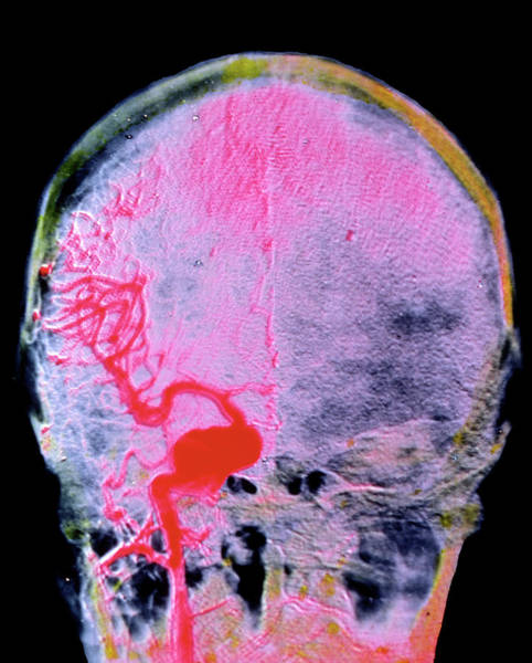 Cerebral Photograph - Brain Aneurism by Alain Pol, Ism/science Photo Library