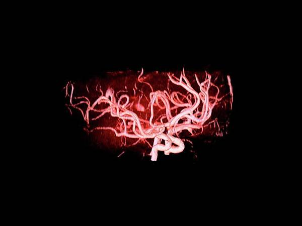 Cerebral Angiogram Photograph - Brain Arteries by Anders Persson, Cmiv